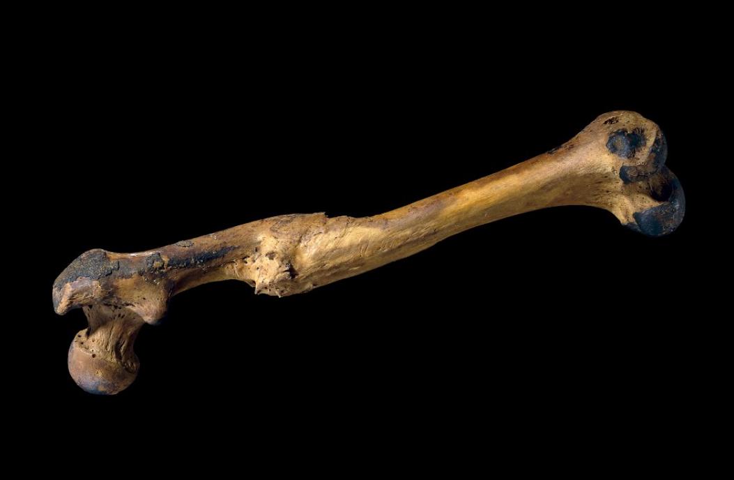Healed Bone